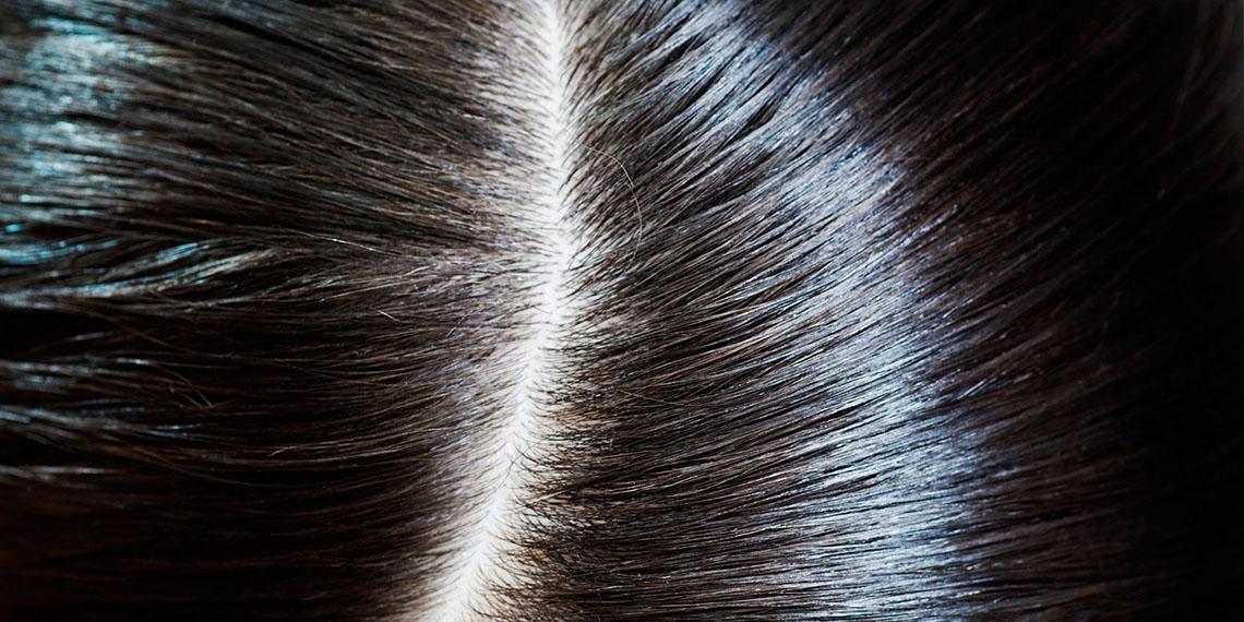 موضة شراء القمل لنمو الشعر تنتشر .. و《القملة》 بـ 15 ريال