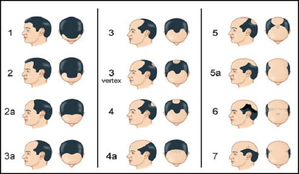 ما لا تعرفه عن تساقط الشعر عند الرجال.. أسبابه والحلول