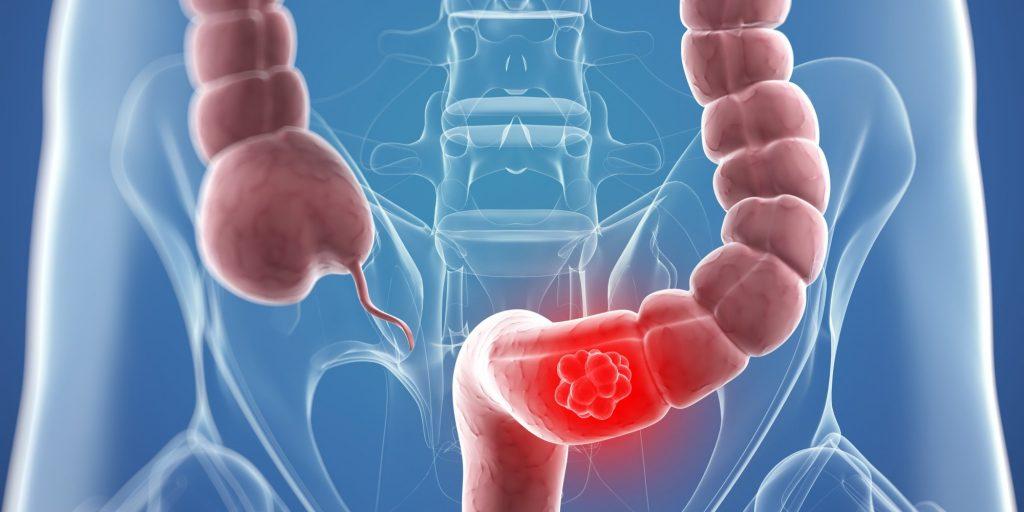 احذروا.. تناول اللحوم المصنعة قد يصيبك بسرطان القولون.. وهذه أعراضه
