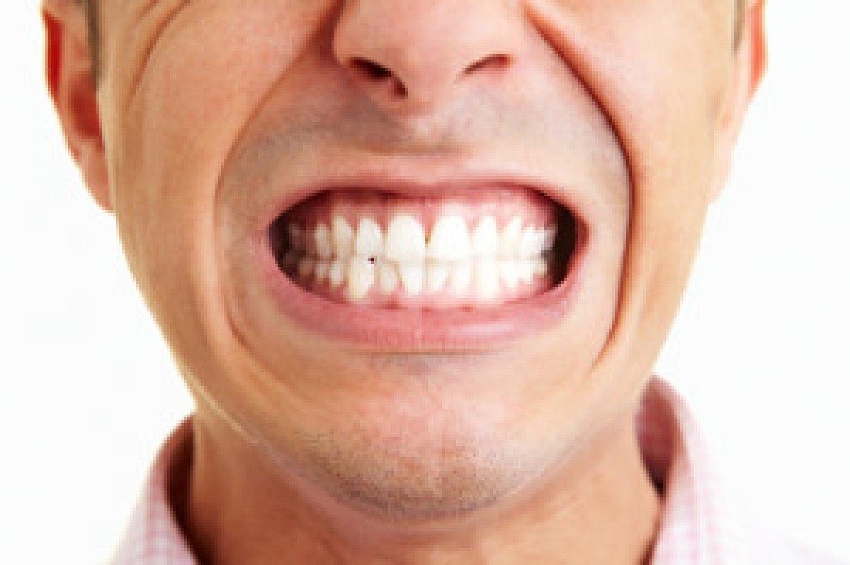 4 طرق منزلية لإزالة جير الأسنان والتخلص من رائحة الفم الكريهة