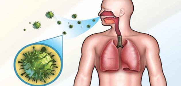 مرض السل .. طرق الوقاية ونصائح للمرضى