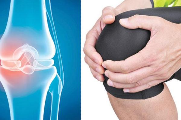 10 علاجات طبيعية لآلام العظام والمفاصل