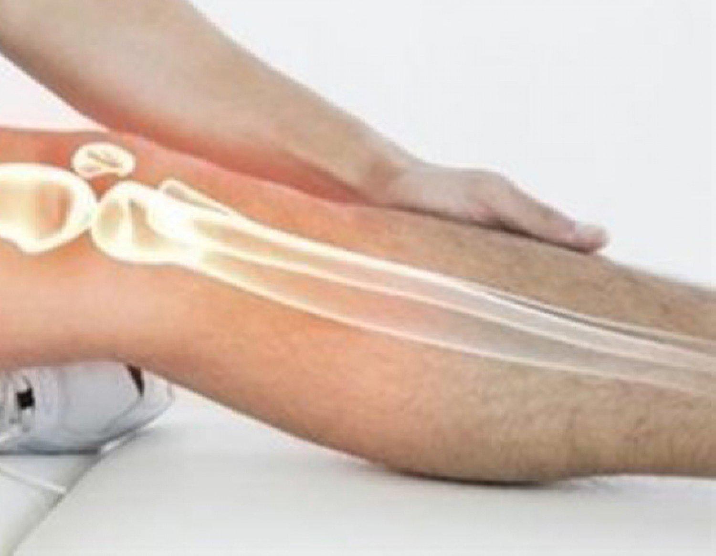 «صمغ» لاصق للعظام يُصلح الكسر في 5 دقائق