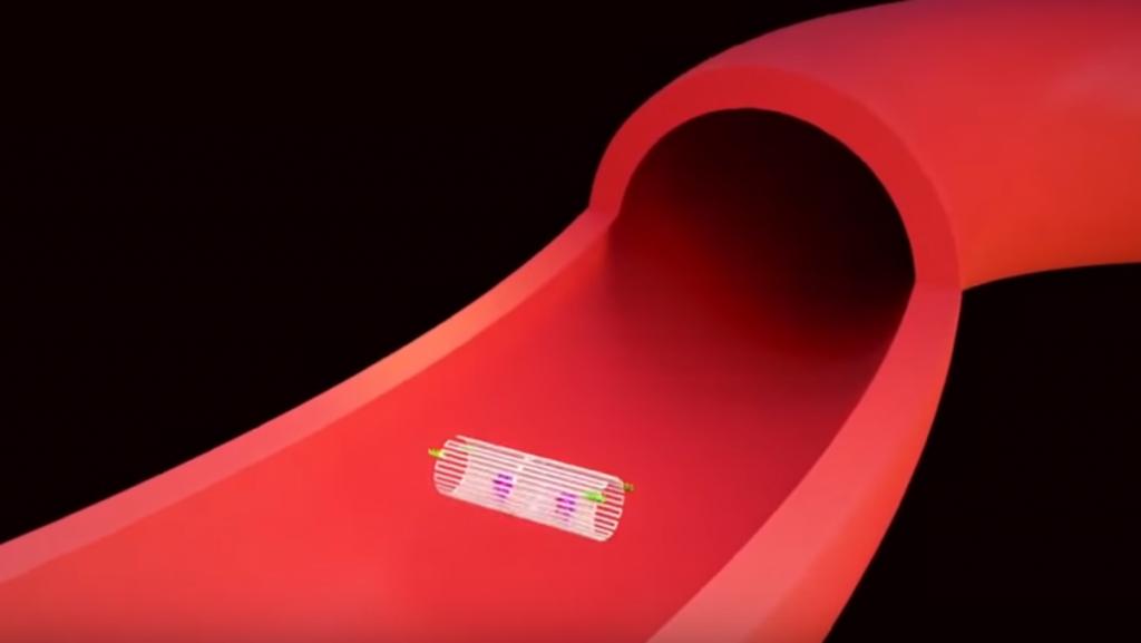 روبوتات فائقة الصغر للتخلص من الأورام السرطانية