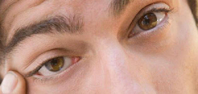تعرَّف على سبب رفّة العين وكيفية إيقافها؟