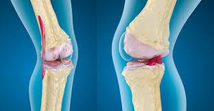 نصيحة ذهبية.. الرياضة تحميك من مرض تآكل مفصل الركبة