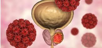 السكري يزيد تهديد السرطان للمرأة أكثر من الرجل