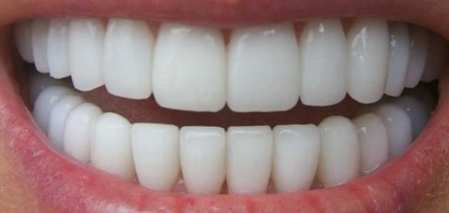 اكتشاف طريقة آمنة لتبييض الأسنان في 4 ساعات