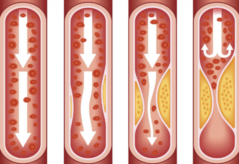 دراسة: تصلب الشرايين مؤشر مهم على الإصابة بالخرف