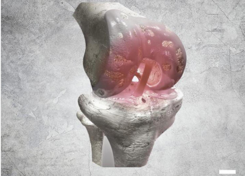 5 نصائح لتجنب الإصابة بالتهاب المفاصل