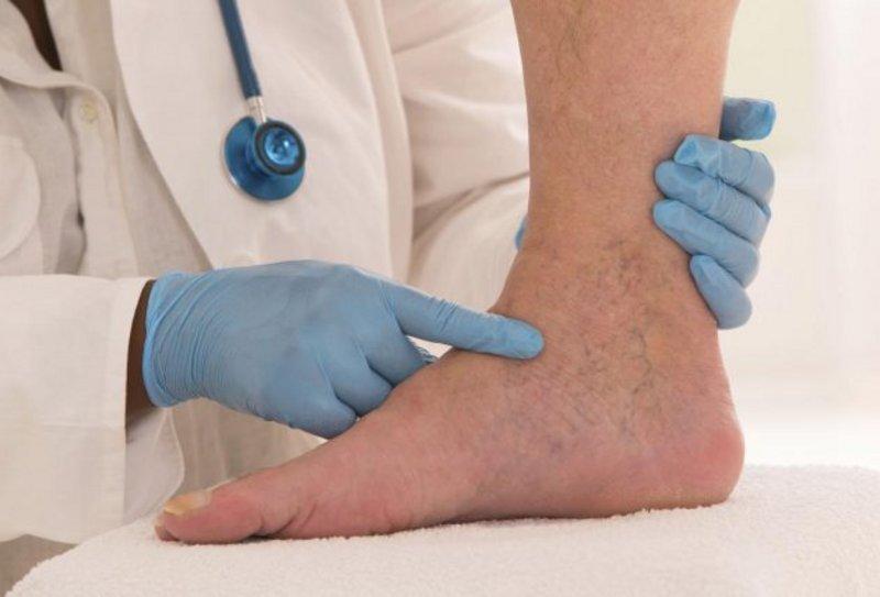"""احذر من """"تورم القدمين"""".. مؤشر لحالة صحية خطيرة"""
