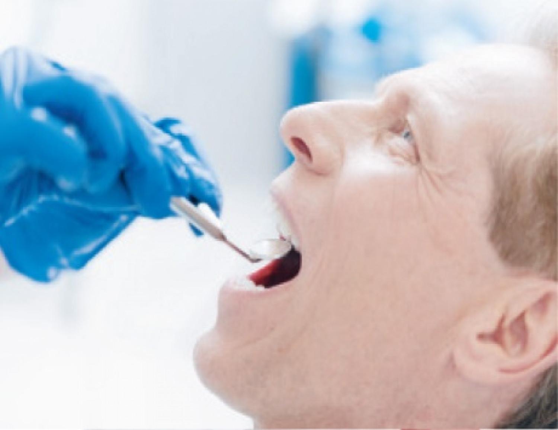 سقوط الأسنان مؤشر مهم لسوء التغذية