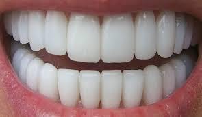 5 عادات يومية سيئة قد تضر بأسنانك وتتلفها