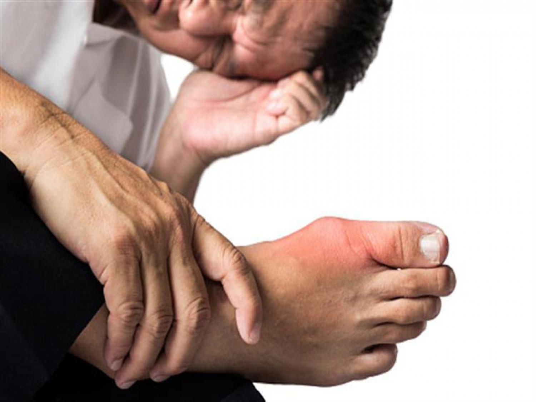 استشاري يحذر: التهاب المفاصل المزمن يسبب التشوه والإعاقة