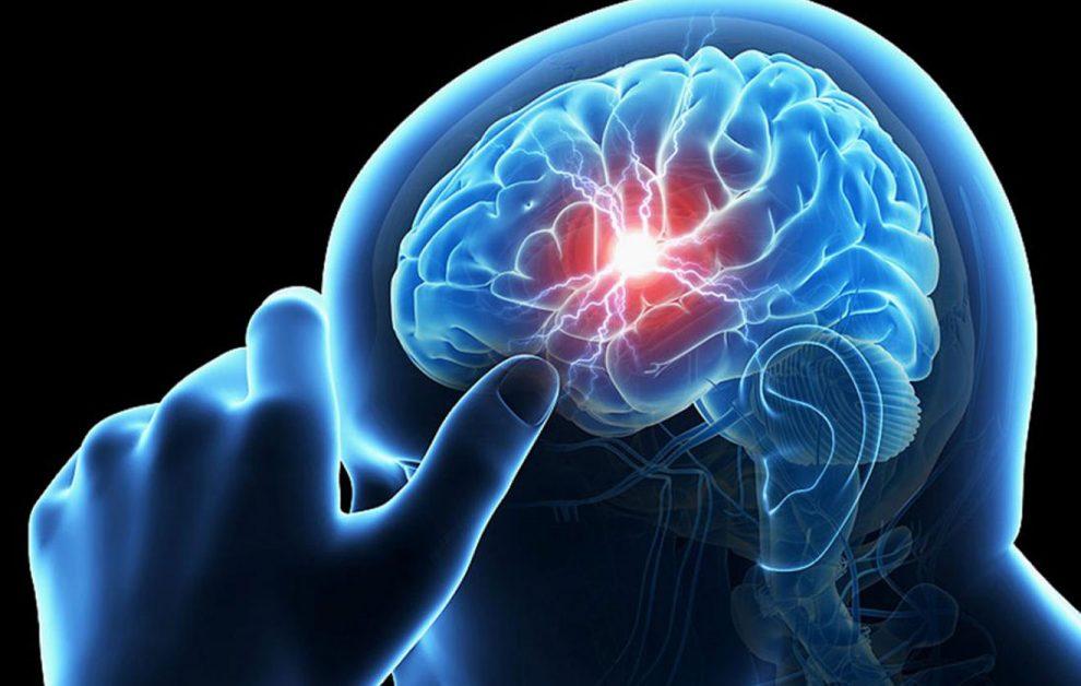 دراسة: ربع سكان العالم سيعانون من السكتة الدماغية