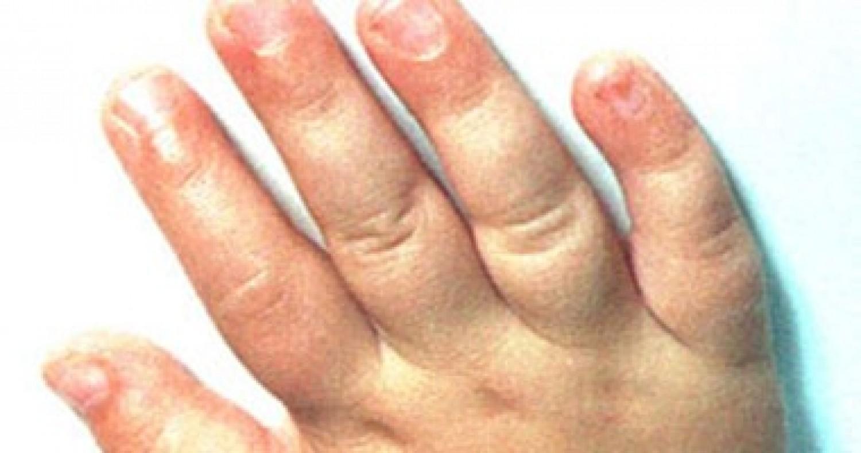 5 أمراض وراء إحساس البرد الدائم بأطراف الجسم.. تعرف عليها