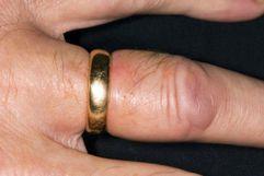 هل تتورم أصابعك؟ إليك 15 سبباً محتملاً