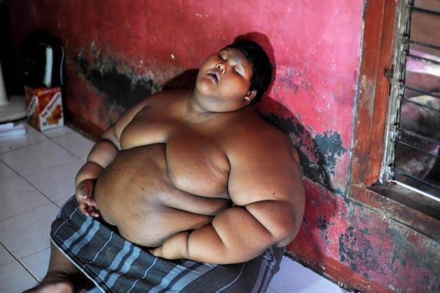 شاهد.. أسمن طفل في العالم بعد أن فقد 106 كيلوجرامات من وزنه