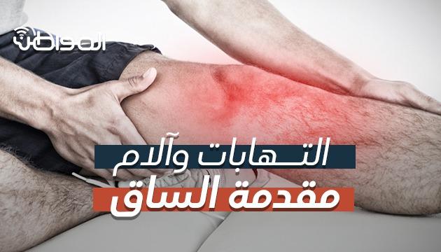 فيديو .. أسباب آلام مقدمة الساق وطرق العلاج