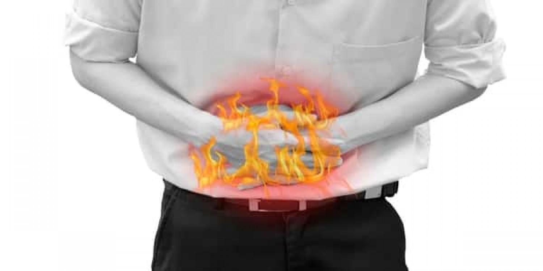 4 علاجات تساعدك في التخلص من «حرقة المعدة»