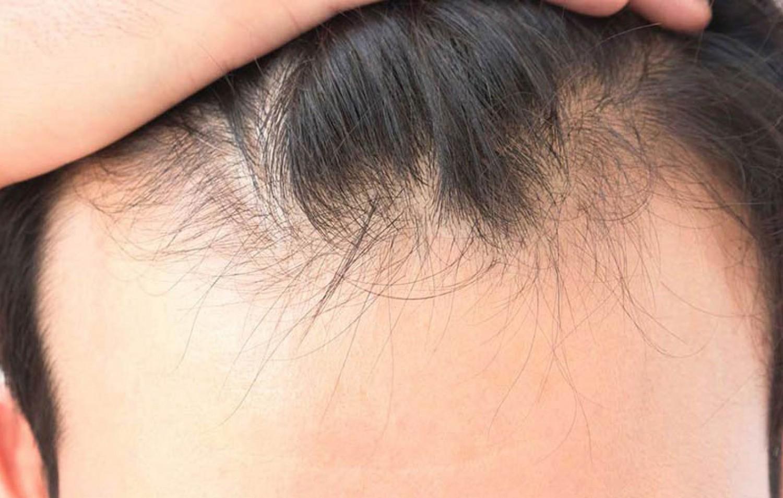 هل تعاني تساقط الشعر؟.. إليكَ 5 فواكه تحل المشكلة