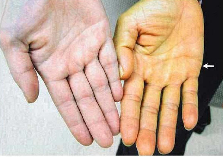 اصفرار الجلد.. علامة على أمراض خطيرة