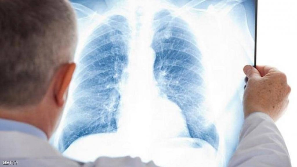 """علماء صينيون يتوصلون لـ""""علاج محتمل"""" لسرطان الرئة"""