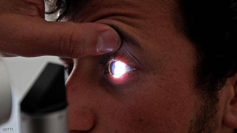 """""""اصفرار العين"""".. مؤشر بسيط على أمراض خطيرة"""