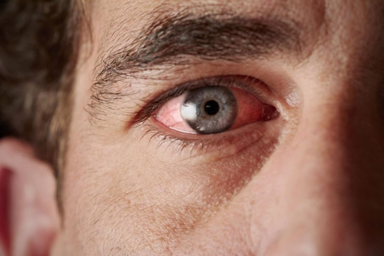 طبيب عيون يوضح الفرق بين الماء الأبيض والجلوكوما وأسباب الإصابة بهما