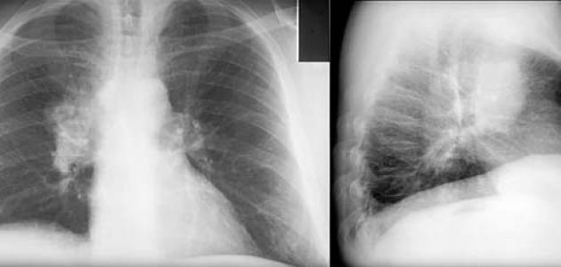 فحص جديد يعيد الأمل لمرضى سرطان الرئة