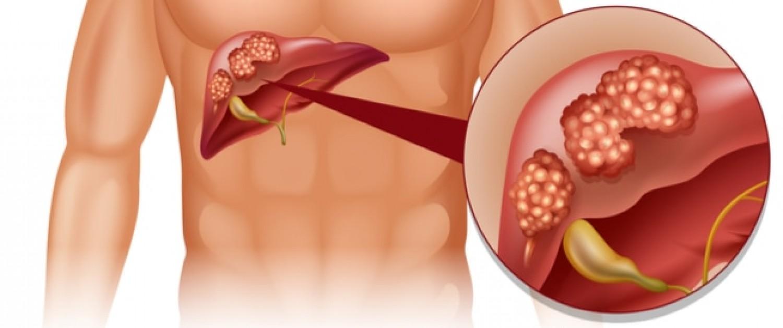 أعراض شائعة تكشف الإصابة بـ«سرطان الكبد».. استشر طبيبك فوراً