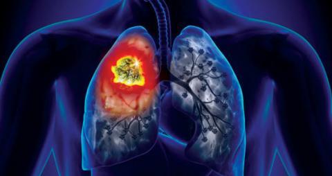 عقار جديد لعلاج سرطان الرئة يحقق نجاحاً بنسبة 54 %