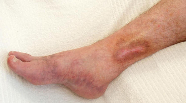 3 مضاعفات خطيرة لجلطة الساق.. تستدعي استشارة الطبيب فورًا