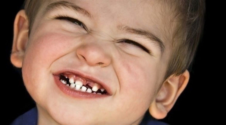 تعرف على أسباب «طحن الأسنان» لدى الأطفال.. وطرق العلاج