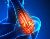 مرضى الروماتيزم أكثر عُرضة للإصابة بارتفاع ضغط الدم