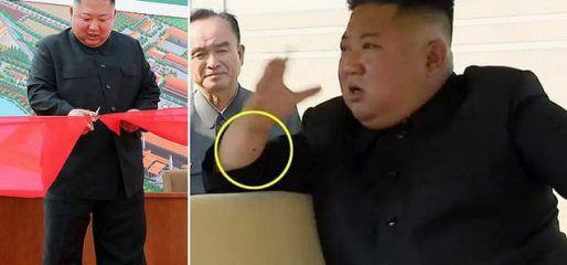 """علامة غامضة على يد """"كيم"""" تكشف سر غيابه المفاجئ.. وطبيب أمريكي يوضح ارتباطها بأمر خطير !"""