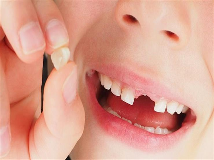 هل يمكن إعادة الأسنان إلى مكانها مرة أخرى حال سقوط أحدًا منها؟.. الصحة كشف الخطوات
